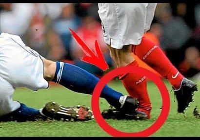 Futbolda yaşanan ən qorxunc zədə anları - VİDEO