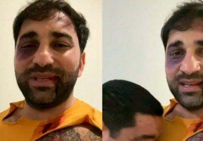 Kamil Zeynallının yayılan fotosuna aydınlıq gətirildi - VİDEO